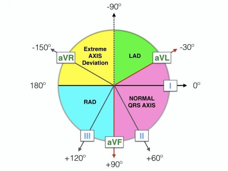 Haxaxial ECG AXIS Reference