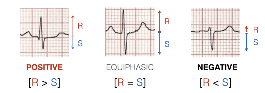 Hexaxial ECG AXIS Quadrant Method 1 2021