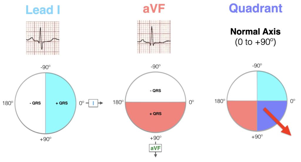 Hexaxial ECG AXIS Quadrant Method Normal axis 2021