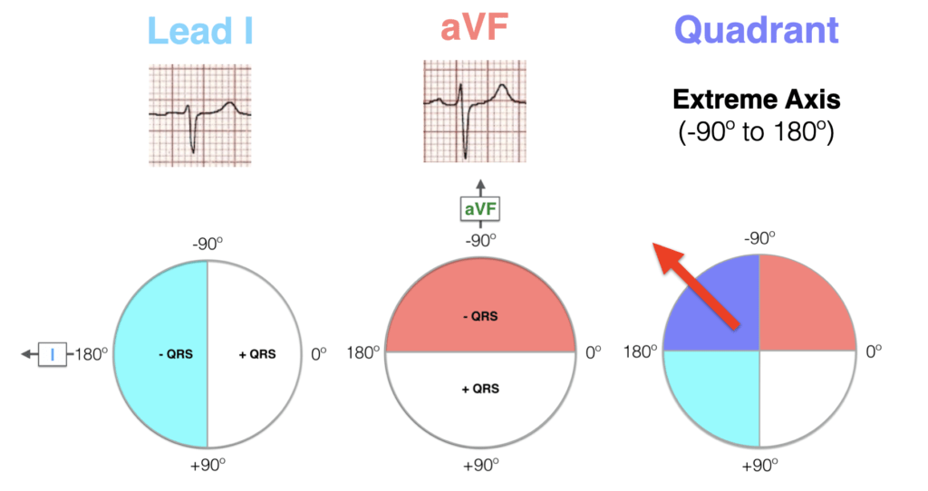 Hexaxial ECG Lead I negative, aVF negative - Extreme axis 2021
