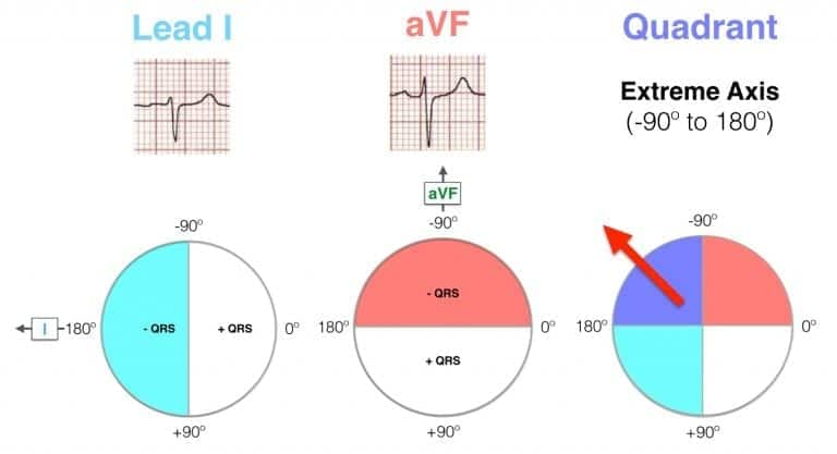 Hexaxial ECG Lead I negative, aVF negative - Extreme axis