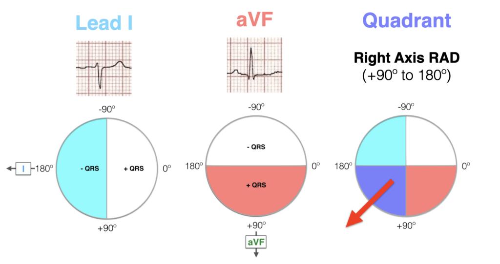 Hexaxial ECG Lead I negative, aVF positive - RAD 2021