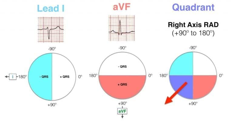 Hexaxial ECG Lead I negative, aVF positive - RAD