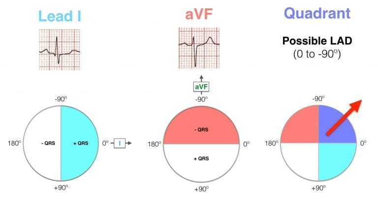 Hexaxial ECG Lead I positive, aVF negative - LAD