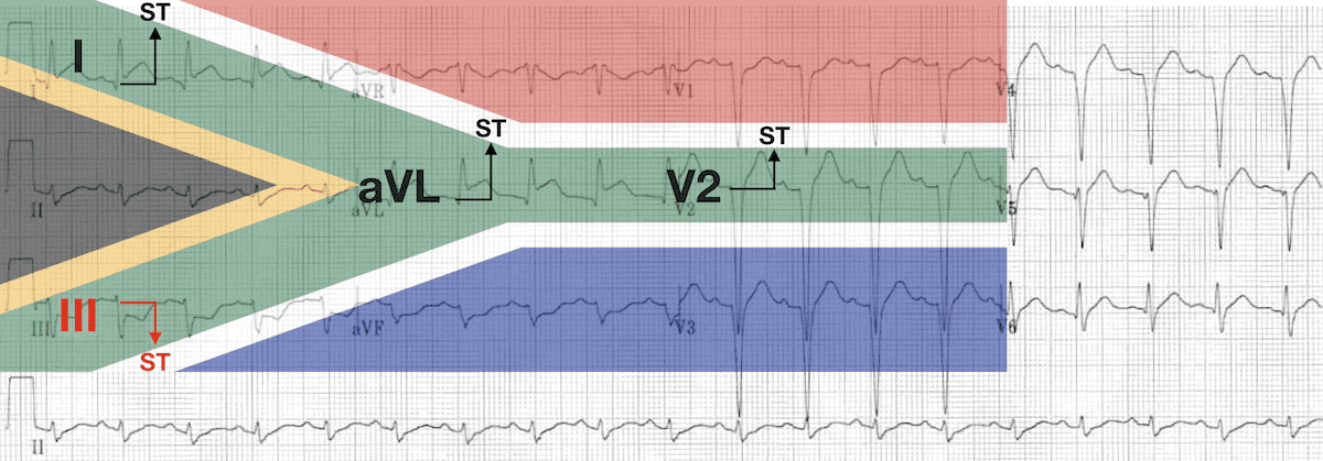 High lateral STEMI South African Flag sign