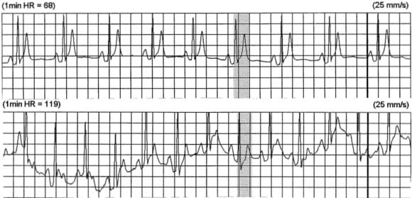 Holter SQTS syndrome