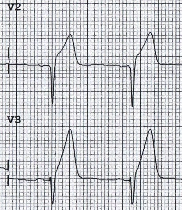 Hyperacute T waves due to anterior STEMI