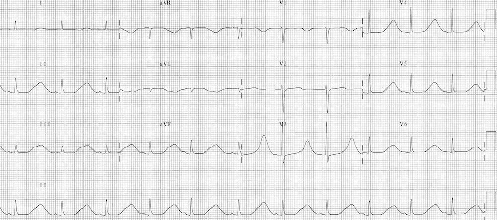 ECG Hypocalcaemia prolonged QTc