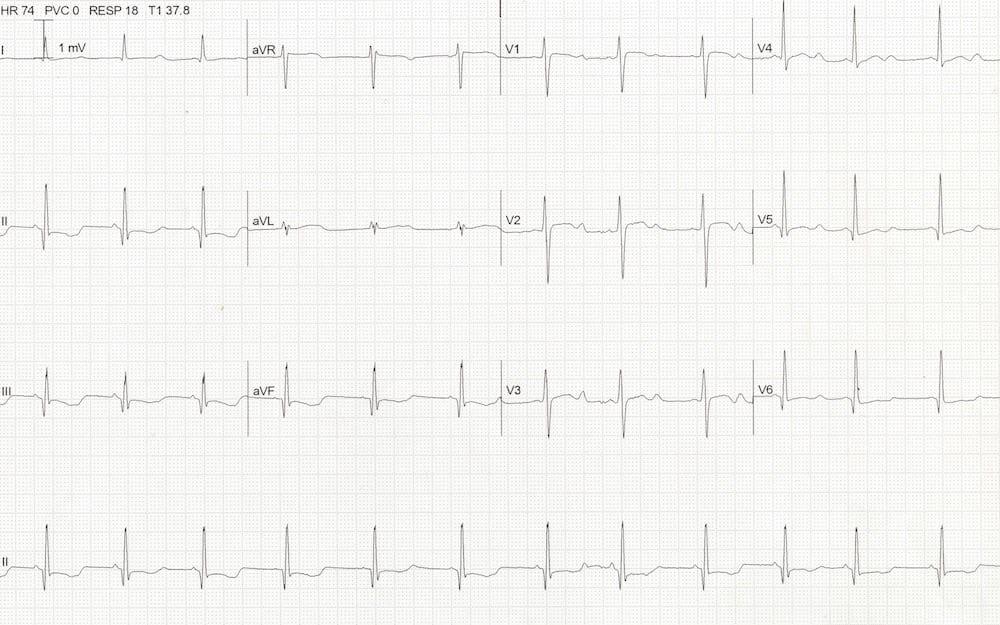 ECG Hypokalaemia QTc 500 potassium 1.9