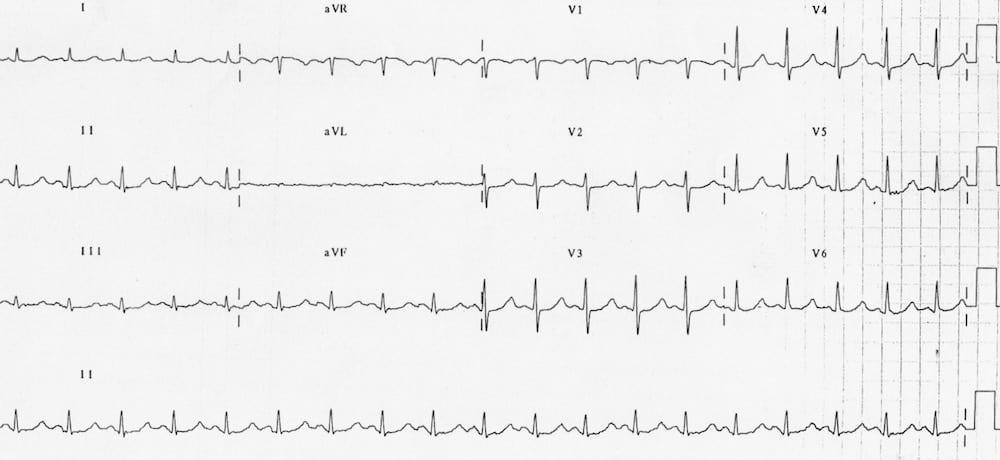 ECG Hypomagnesaemia prolonged QTc 510