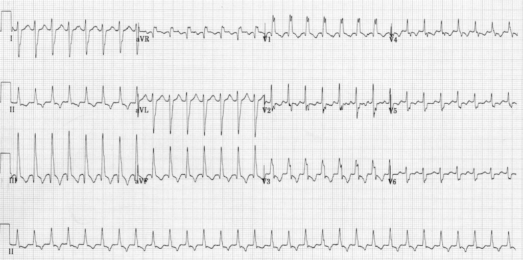 Idiopathic Fascicular Left Ventricular Tachycardia 2