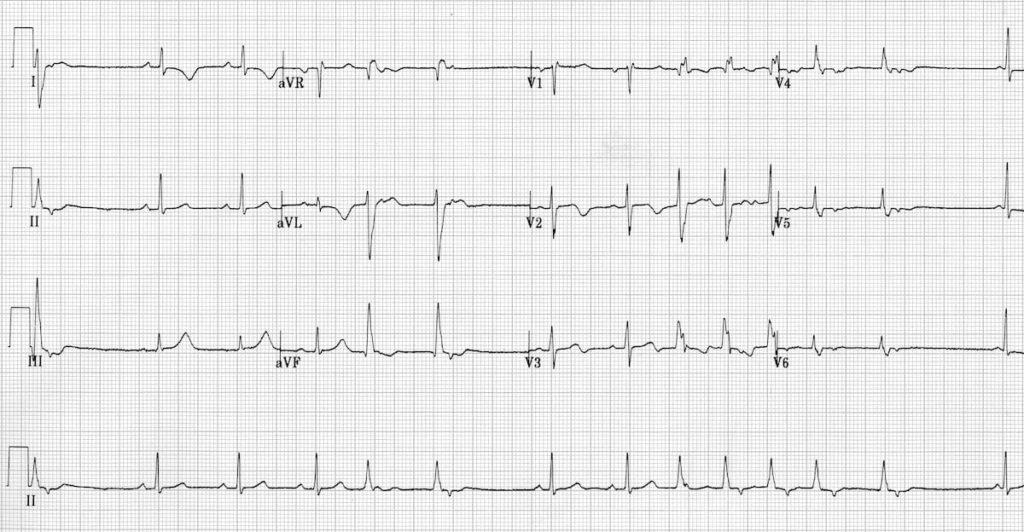 Idiopathic Fascicular Left Ventricular Tachycardia 2a