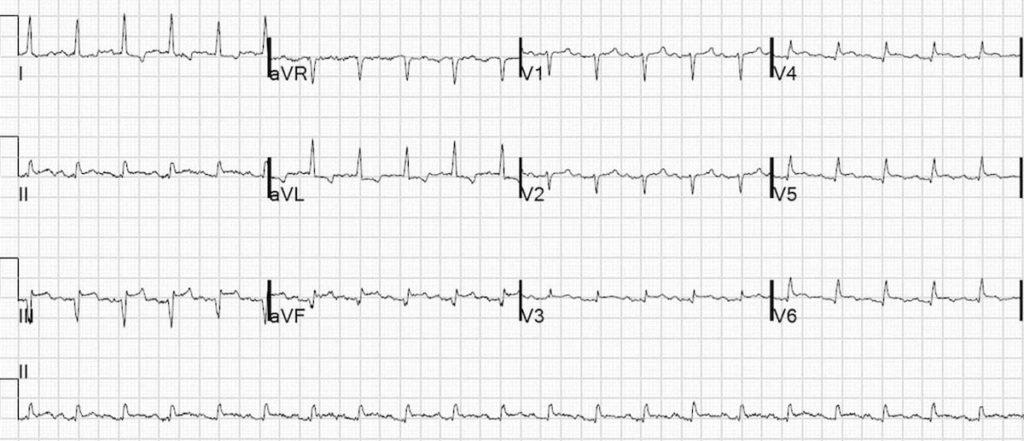 Inferior Left Ventricular Aneurysm 2