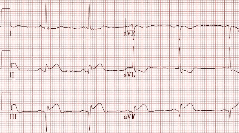 Inferior Q waves with STEMI