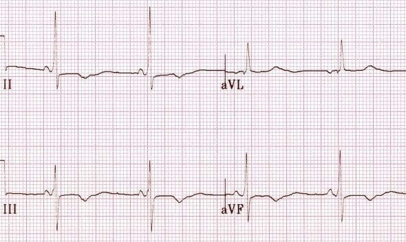 Inferior T wave inversion due to acute ischaemia