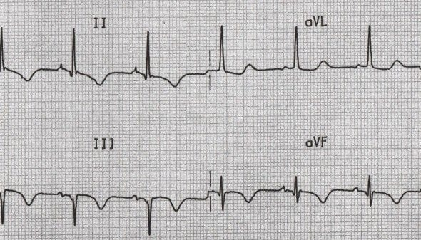 Inferior T wave inversion with Q waves
