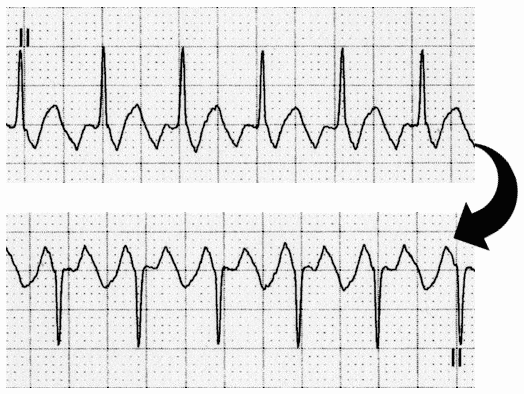 Invert ECG to enhance flutter waves in Lead II