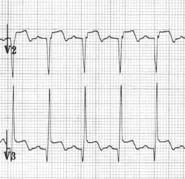 Inverted U waves in a patient with Prinzmetal angina
