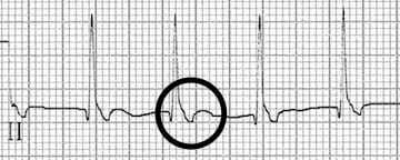 Inverted retrograde P waves in lead II