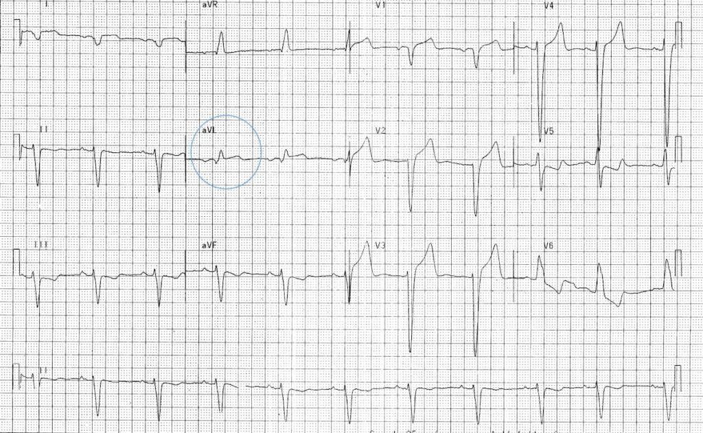 LBBB-with-Sgarbossa