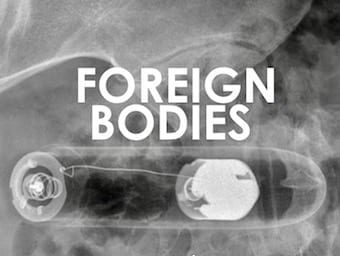 LITFL-Top-10-Foreign-Bodies-on-X-ray-340