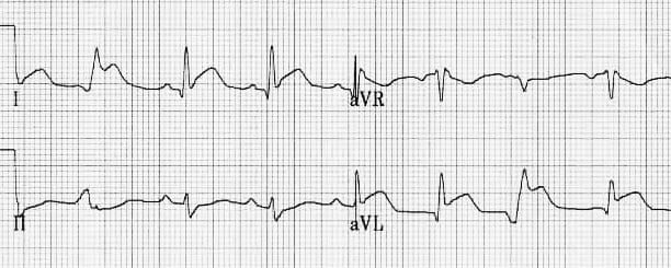 Lateral Q waves with STEMI
