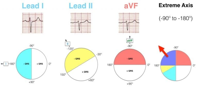 Lead I II aVF Hexaxial Evaluation Extreme axis deviation