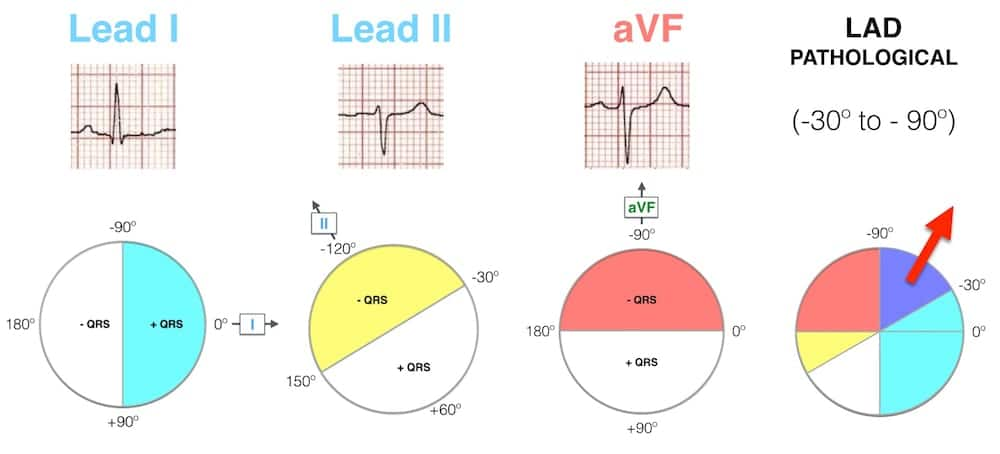 Lead-I-II-aVF-Hexaxial-Evaluation-LAD-Pathological