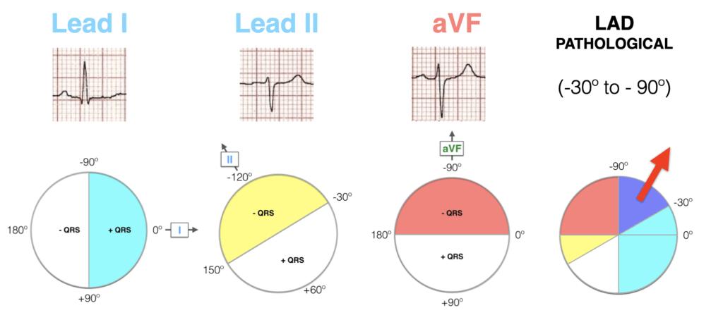 Lead I II aVF Hexaxial Evaluation LAD Pathological 2021