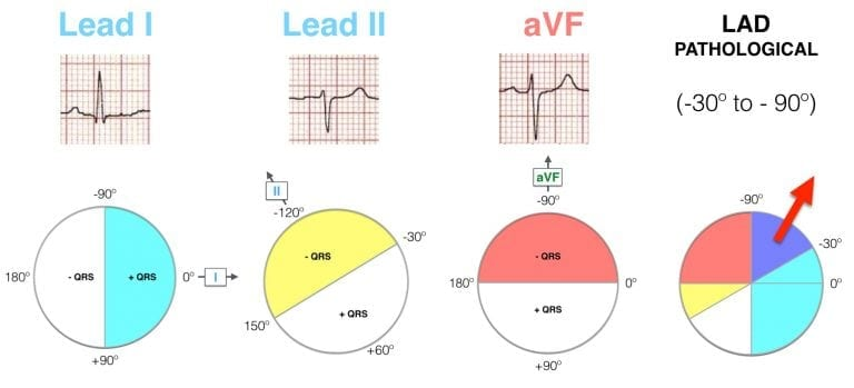 Lead I II aVF Hexaxial Evaluation LAD Pathological