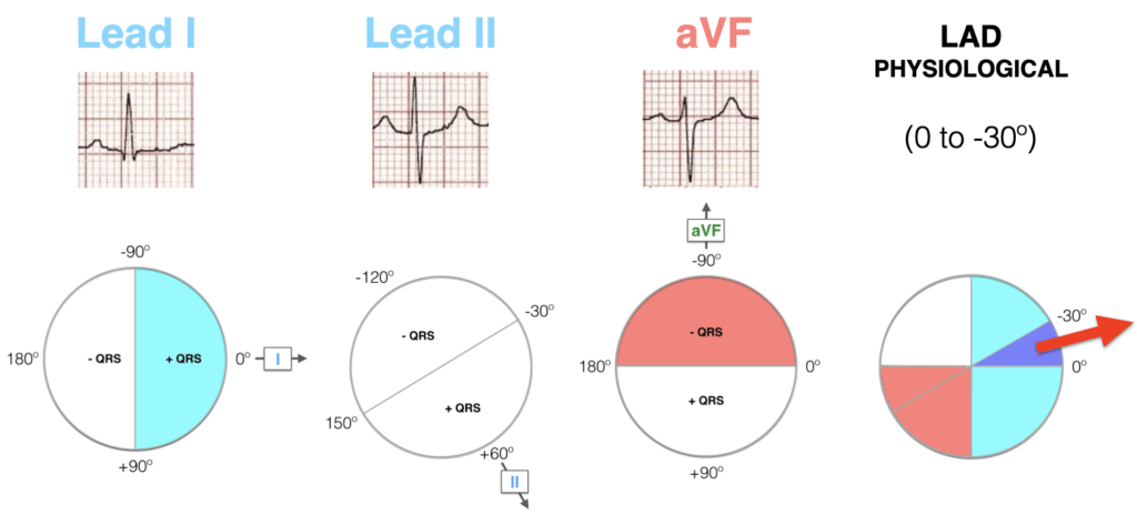 Lead I II aVF Hexaxial Evaluation LAD Physiological 2021