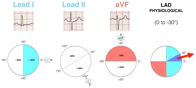 Lead I II aVF Hexaxial Evaluation LAD Physiological