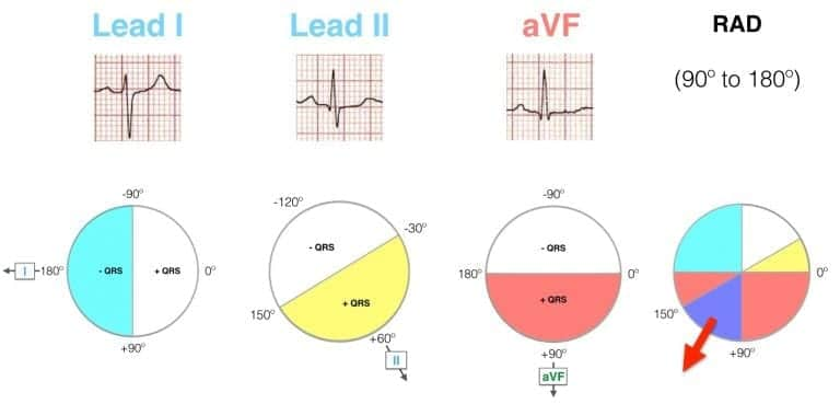 Lead I II aVF Hexaxial Evaluation RAD