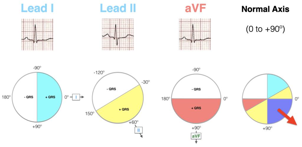 Lead I II aVF Hexaxial evaluation Normal axis 2021