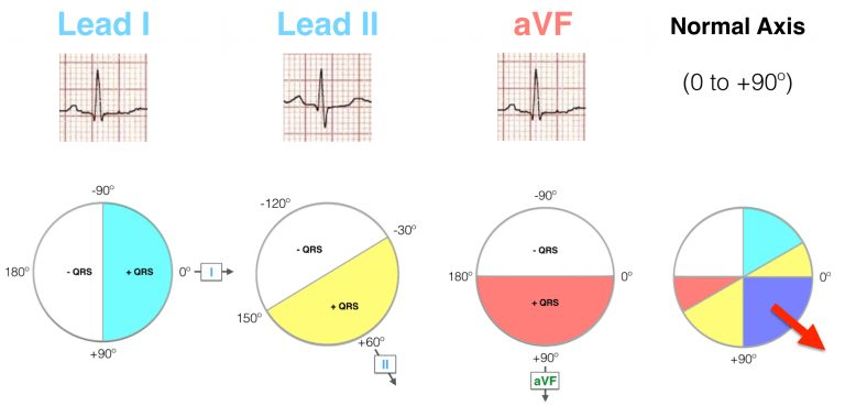 Lead I II aVF Hexaxial evaluation Normal axis