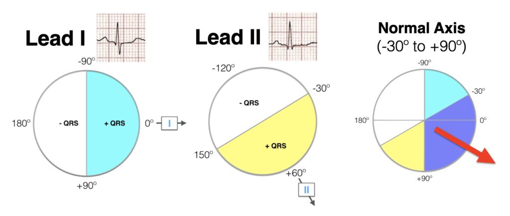Lead I Lead II hexaxial analysis Normal axis 2021