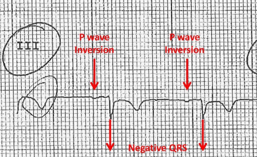 Lead III Inversions