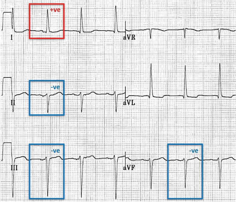 Left Anterior Fascicular Block (LAFB) Left axis LAD