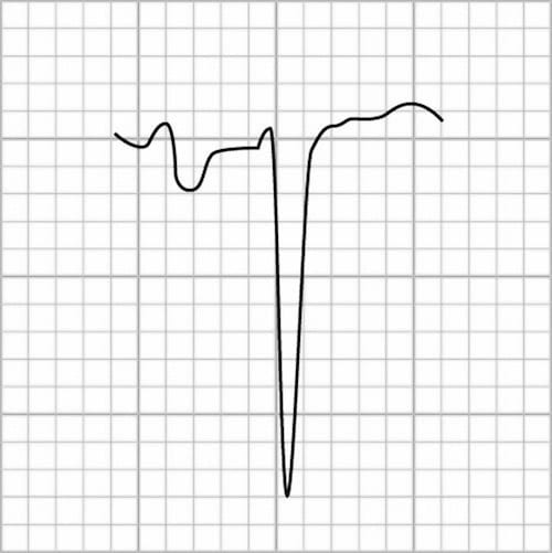 Left-Atrial-Enlargement-Lead-V1