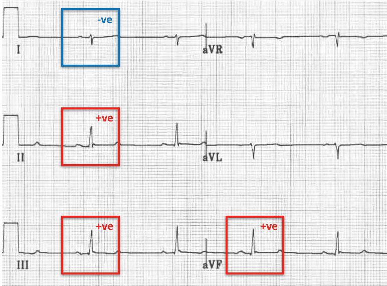 Left Posterior Fascicular Block (LPFB) Right axis deviation