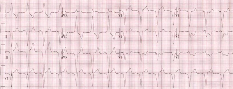 Left bundle branch block with T-wave inversion