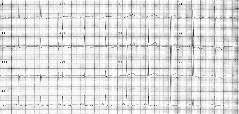 Left ventricular hypertrophy with T-wave inversion