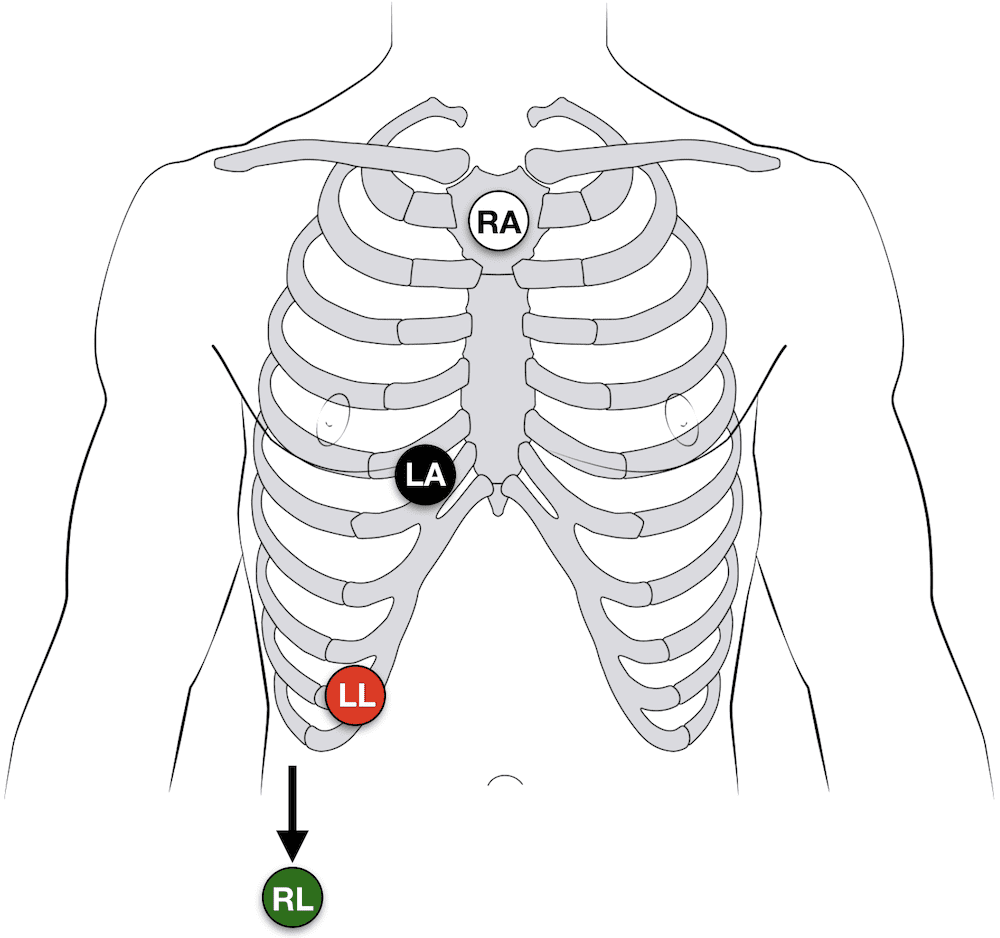 Lewis Lead ECG placement AV dissociation