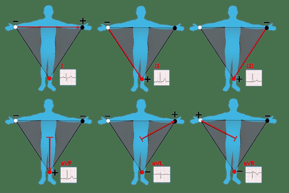 Limb_leads_of_EKG