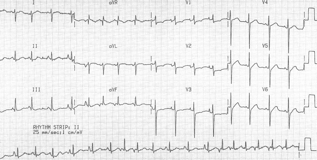 This ECG shows multifocal atrial tachycardia with additional features of  COPD: