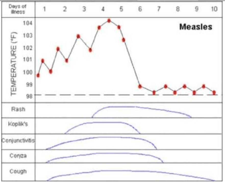 Measles timeline