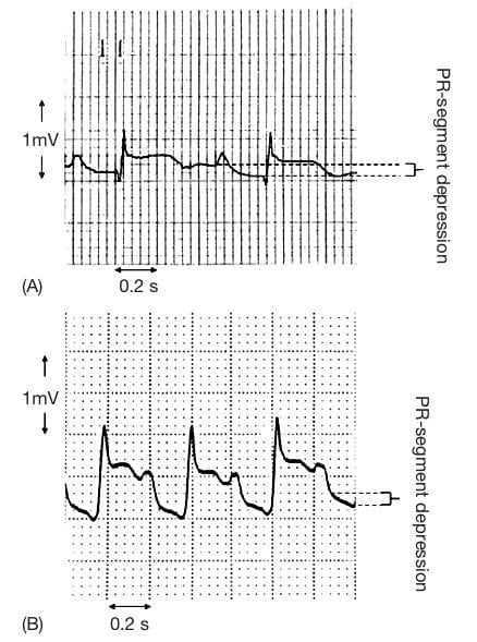 Measurement of PR-segment depression
