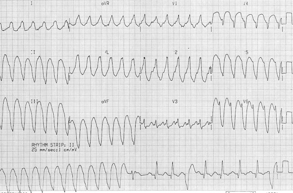 Monomorphic ventricular tachycardia VT 2