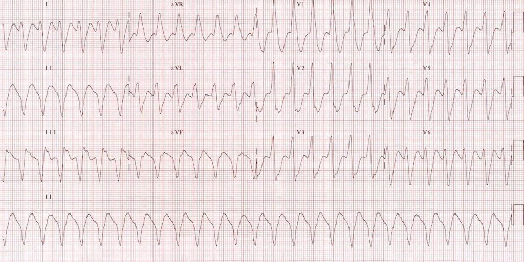 Monomorphic ventricular tachycardia VT 3