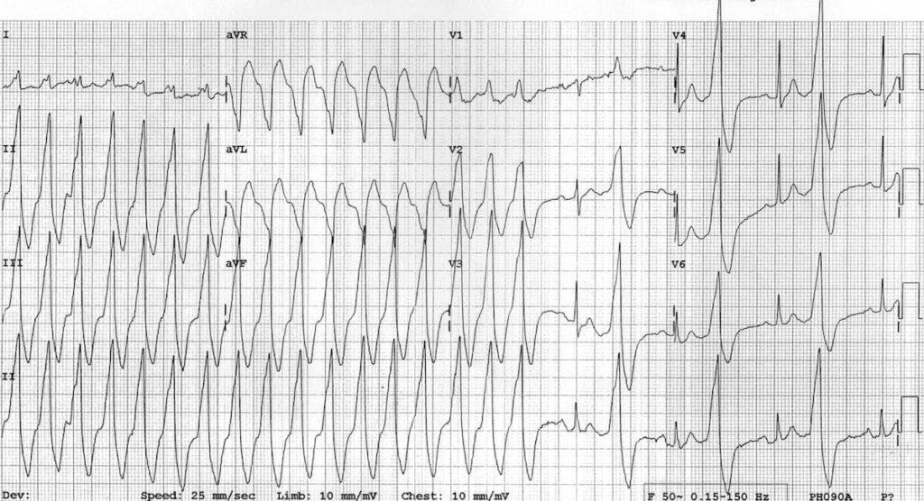 Monomorphic ventricular tachycardia VT 4 and bigeminy